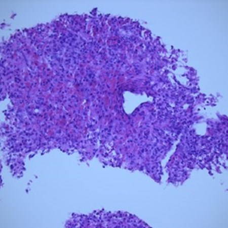 Pancytopenia due to visceral leishmaniasis diagnosed on splenic biopsy