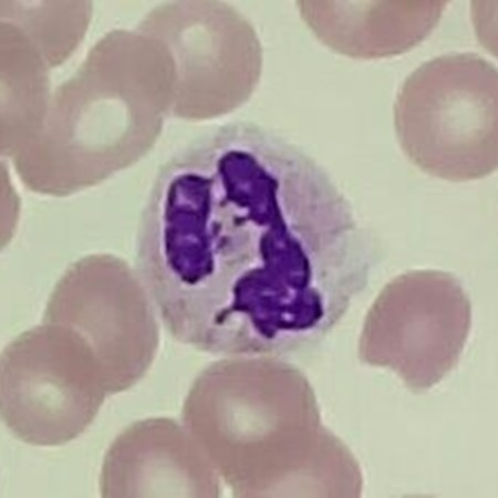 The UK distinguished in a neutrophil