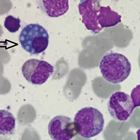 An interesting finding of  Ebstain-Barr Virus infection in the bone marrow: Mott cell