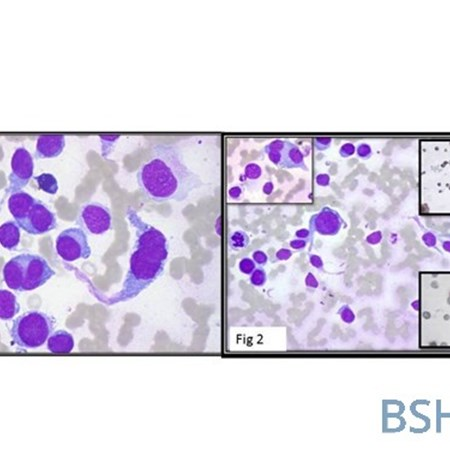 Haematology images | British Society for Haematology