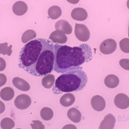 Blastic plasmacytoid dendritic cell leukaemia