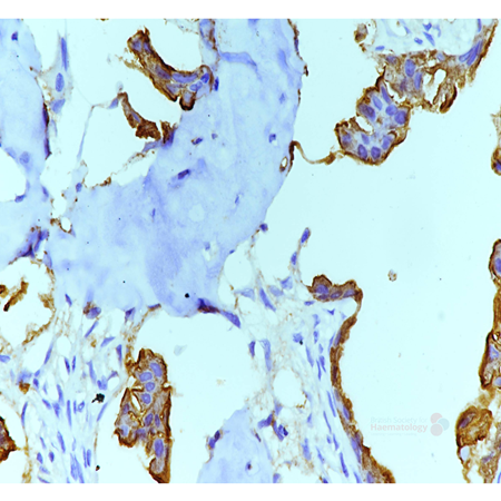 Disseminated metastatic prostatic carcinoma in a young male (4)
