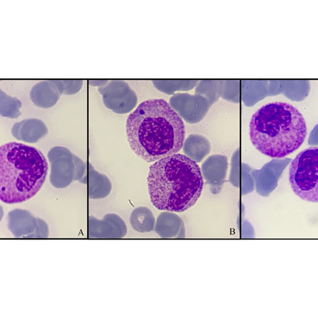 Howell-Jolly body-like inclusions in reactive  myelocytes and metamyelocytes