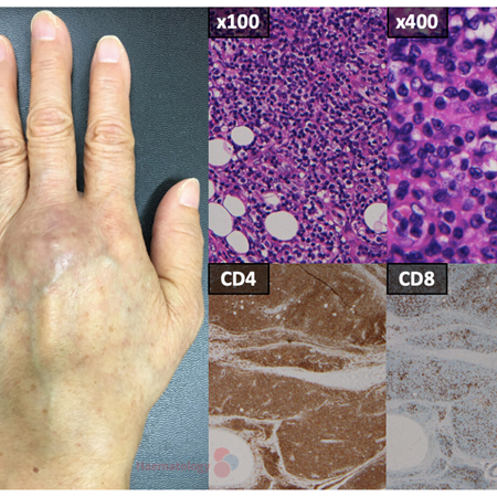 Adult T-cell leukaemia/lymphoma presenting with synovitis